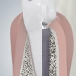 Querschnitt Zahn-Implantat