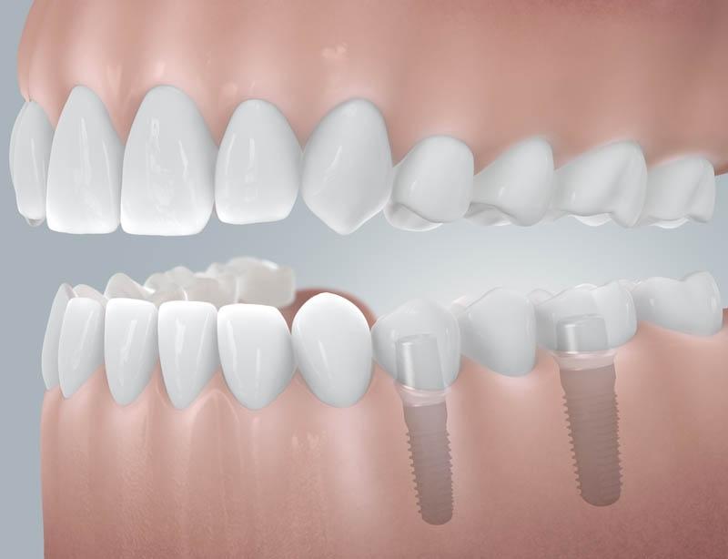 CAMLOG_Schaltluecke_mit_Implantatversorgung