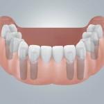 Zahnloser UK mit Brueckenversorgung
