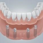 Zahnloser UK mit Locatorversorgung