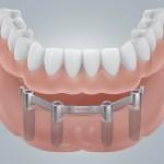 Zahnloser UK mit Stegversorgung
