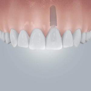 CAMLOG_Einzelzahnluecke_mit_Implantatversorgung
